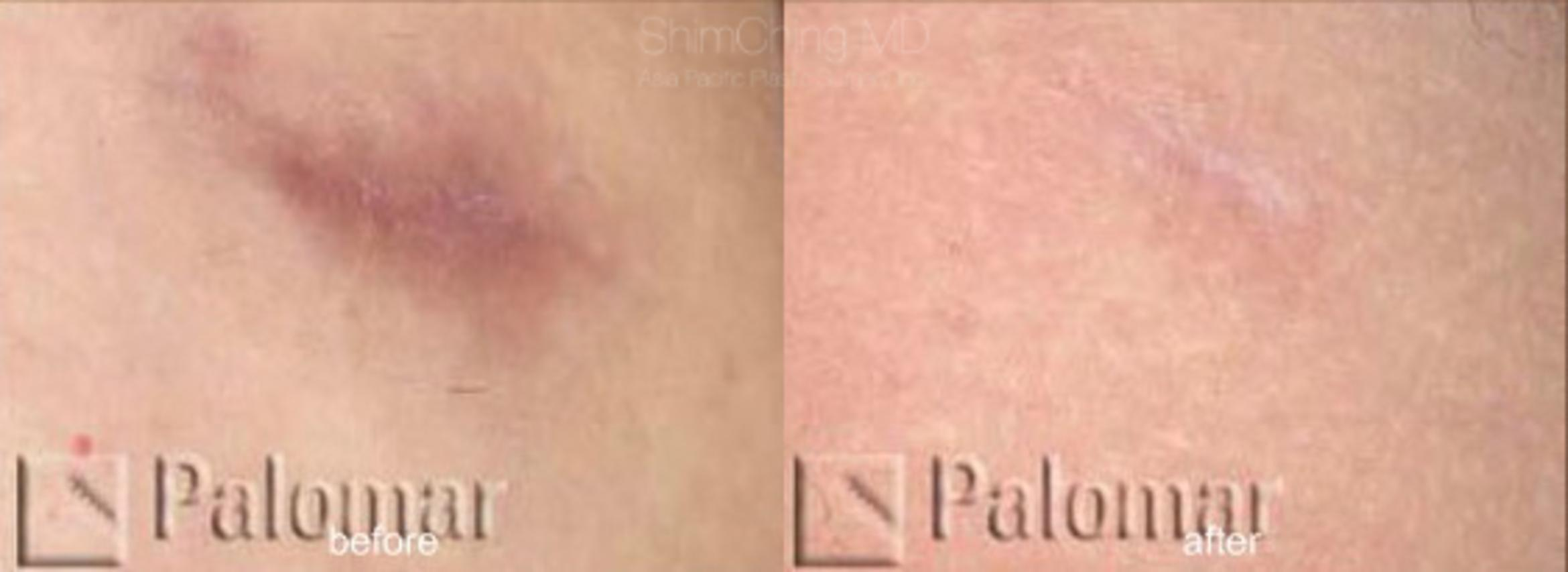 Laser Resurfacing Case 141 Before & After View #1 | Honolulu, HI | Shim Ching, MD: Asia Pacific Plastic Surgery