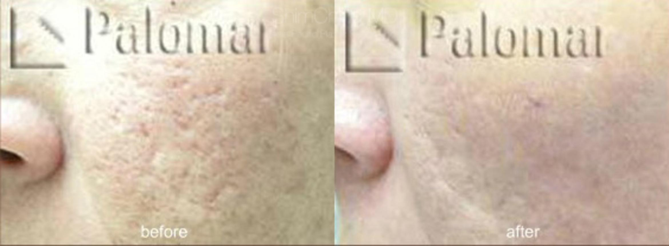 Laser Resurfacing Case 142 Before & After View #1 | Honolulu, HI | Shim Ching, MD: Asia Pacific Plastic Surgery