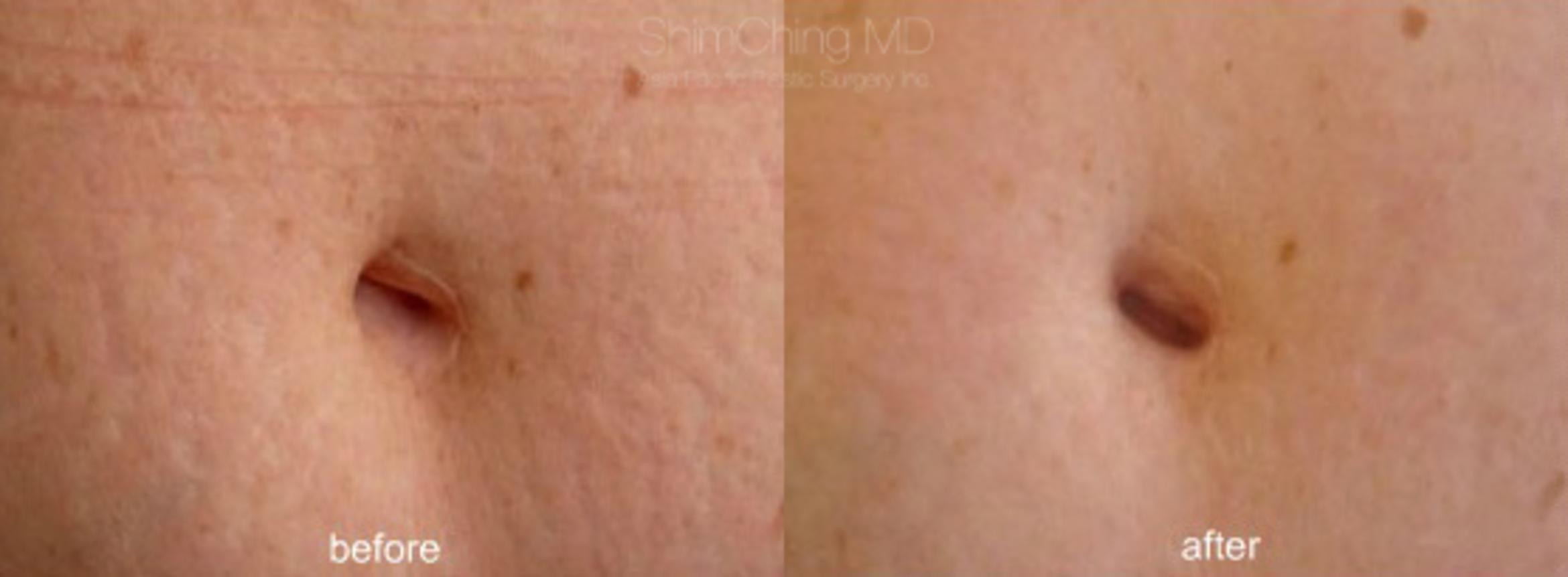 Laser Resurfacing Case 192 Before & After View #1 | Honolulu, HI | Shim Ching, MD: Asia Pacific Plastic Surgery