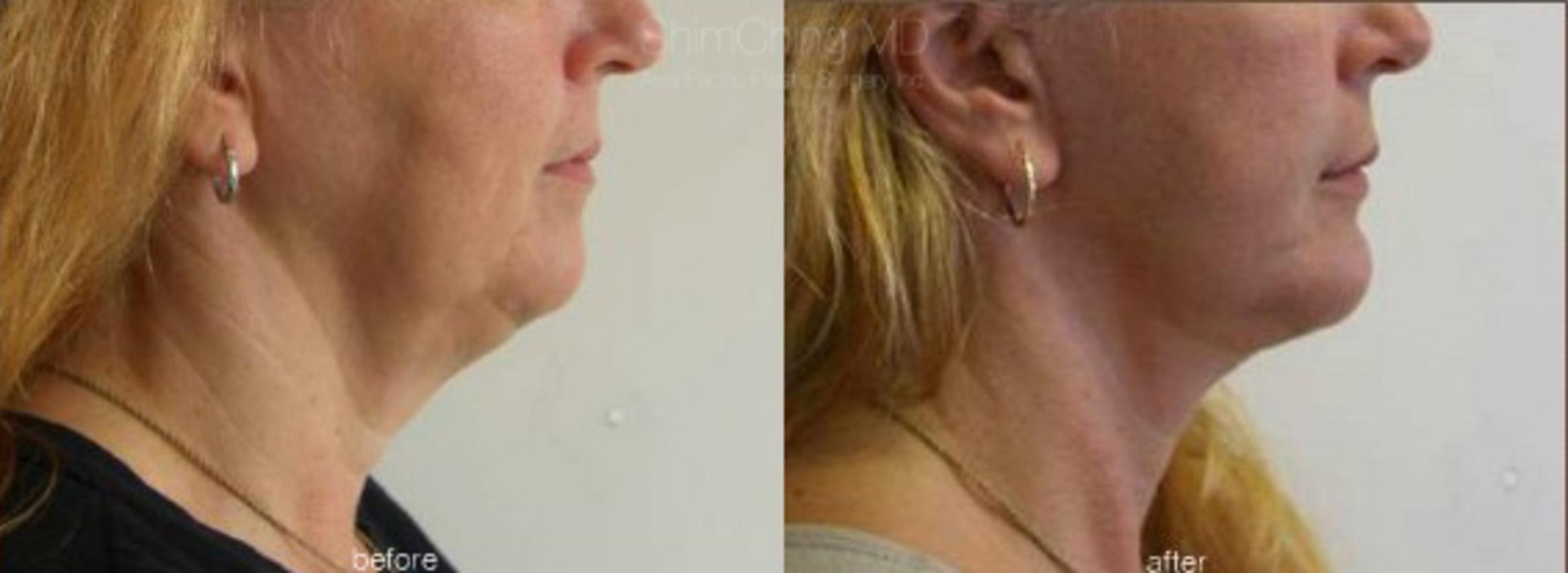 Necklift Case 27 Before & After View #1 | Honolulu, HI | Shim Ching, MD: Asia Pacific Plastic Surgery