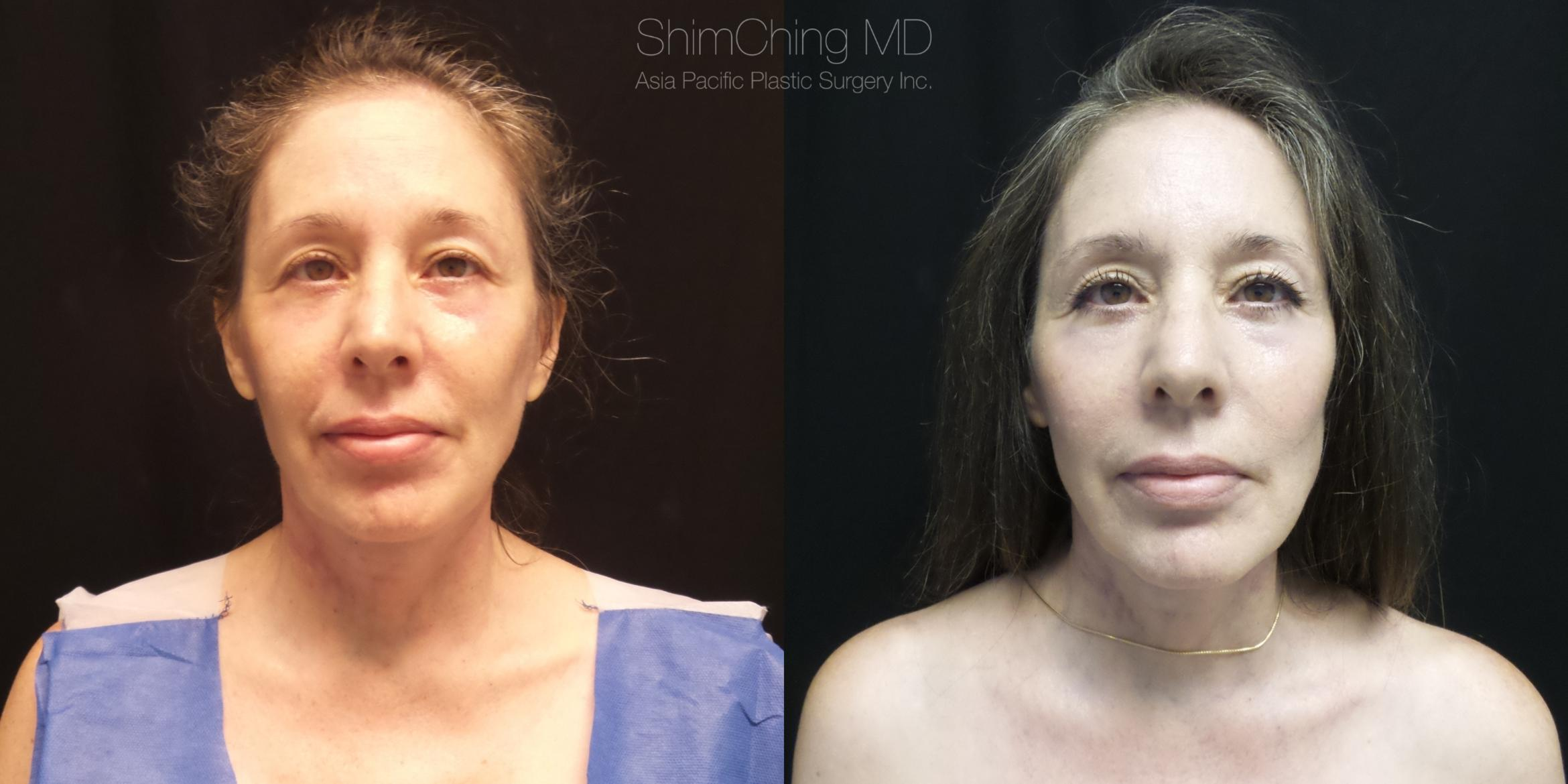 Necklift Case 274 Before & After Front | Honolulu, HI | Shim Ching, MD: Asia Pacific Plastic Surgery