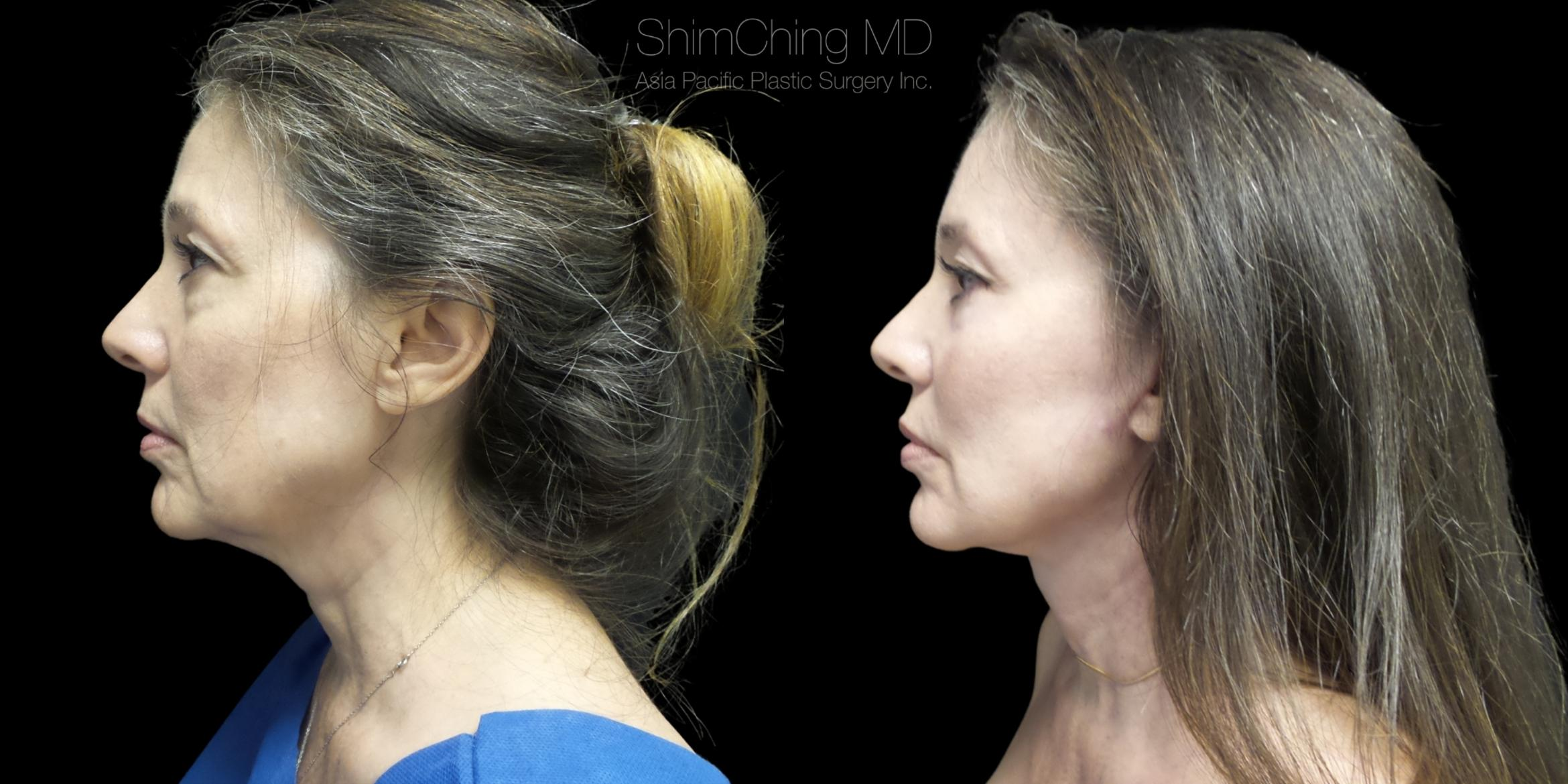 Necklift Case 274 Before & After Right Side | Honolulu, HI | Shim Ching, MD: Asia Pacific Plastic Surgery