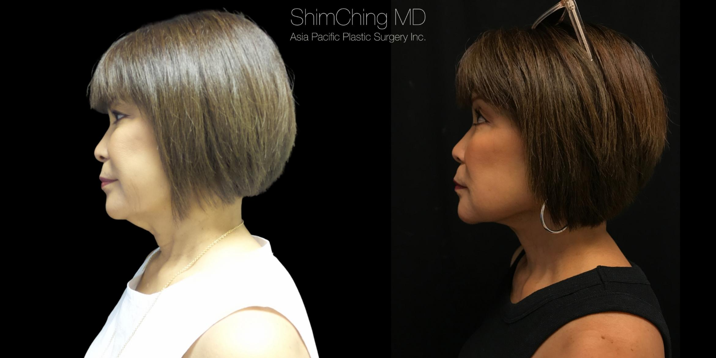 Necklift Case 284 Before & After Right Side | Honolulu, HI | Shim Ching, MD: Asia Pacific Plastic Surgery