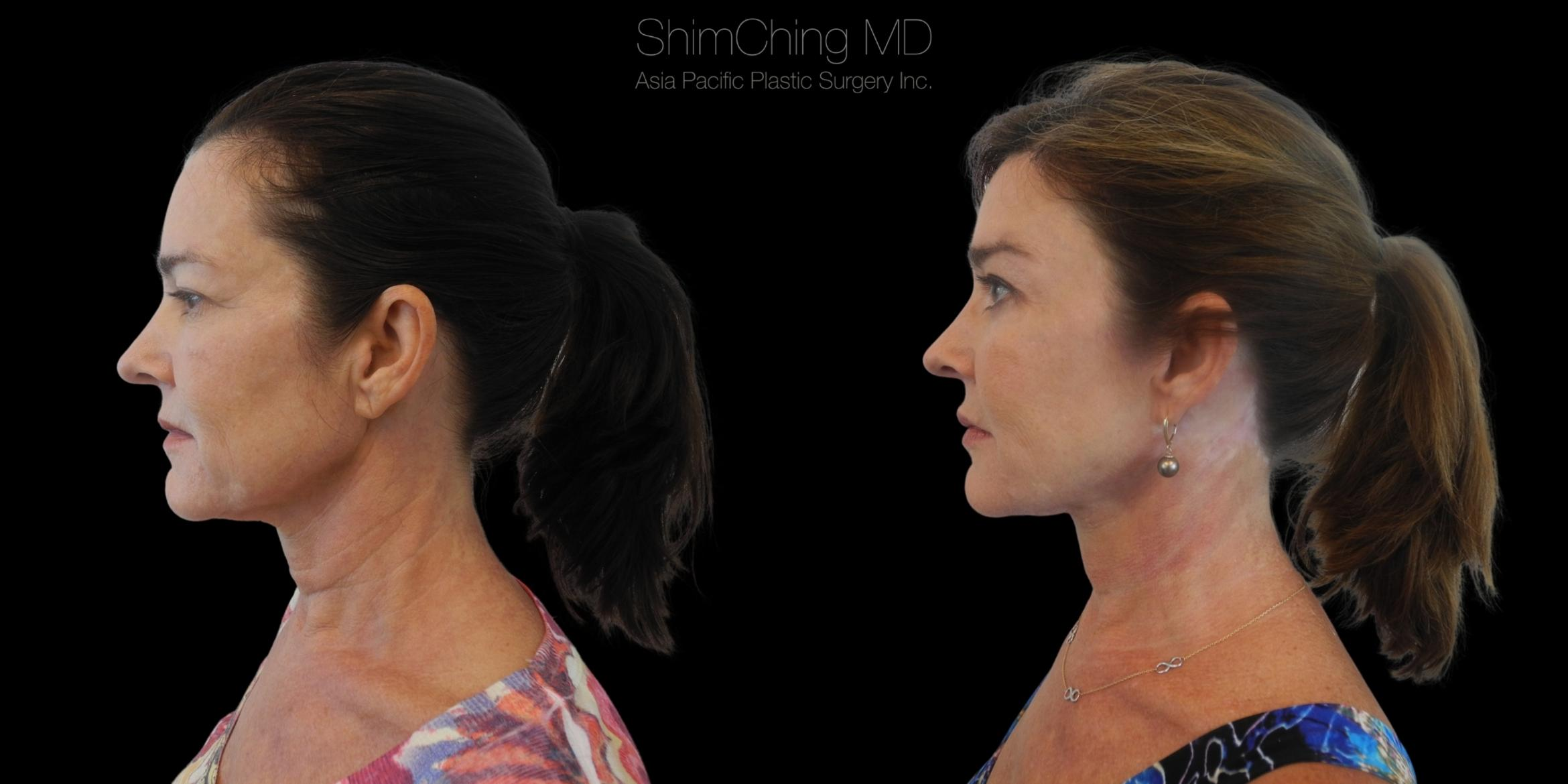 Necklift Case 287 Before & After Right Side | Honolulu, HI | Shim Ching, MD: Asia Pacific Plastic Surgery