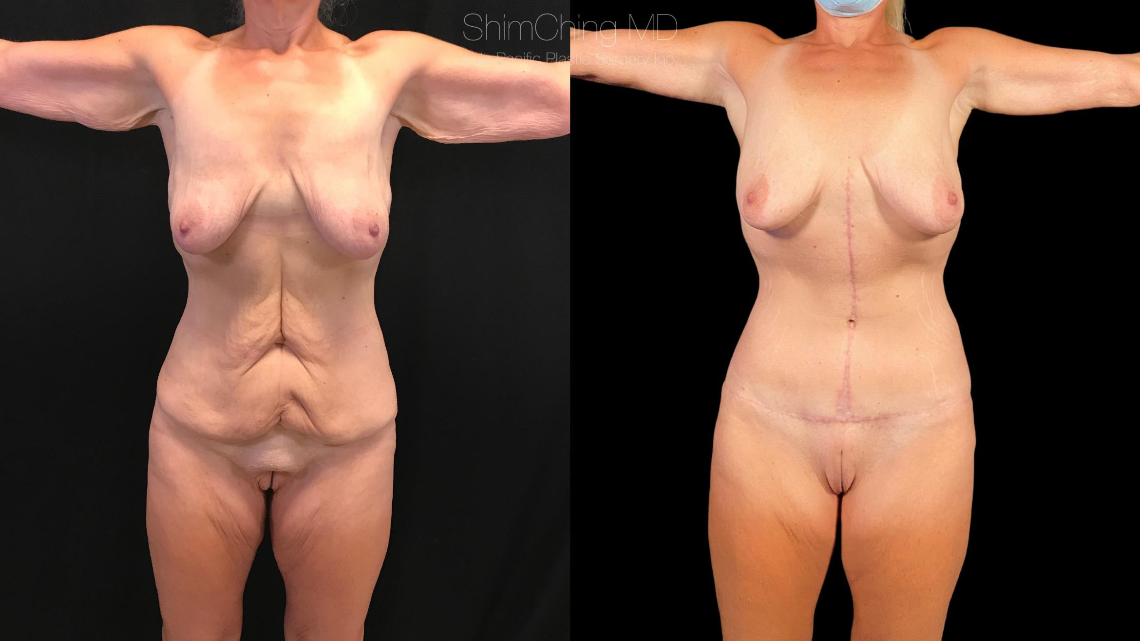 Post-Bariatric Body Contouring Case 271 Before & After Front | Honolulu, HI | Shim Ching, MD: Asia Pacific Plastic Surgery