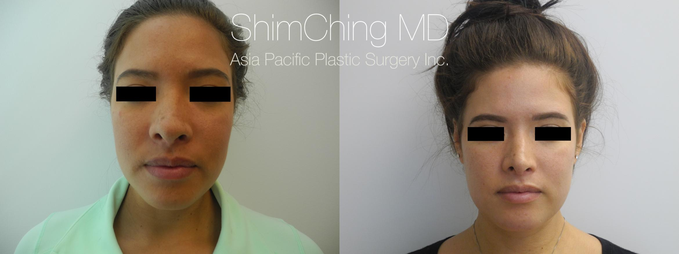 Rhinoplasty Case 222 Before & After View #1 | Honolulu, HI | Shim Ching, MD: Asia Pacific Plastic Surgery