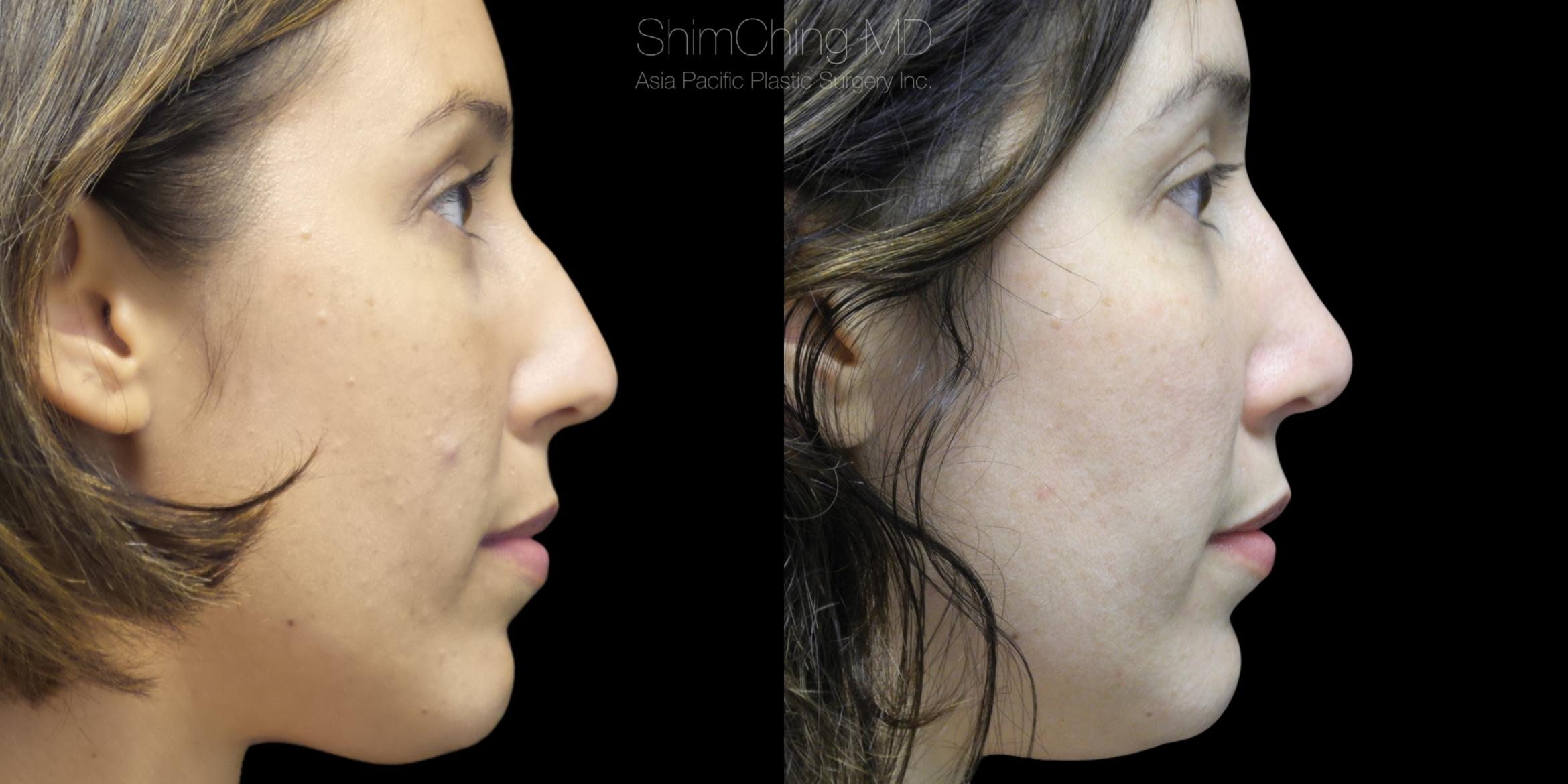 Rhinoplasty Case 309 Before & After Left Side | Honolulu, HI | Shim Ching, MD: Asia Pacific Plastic Surgery