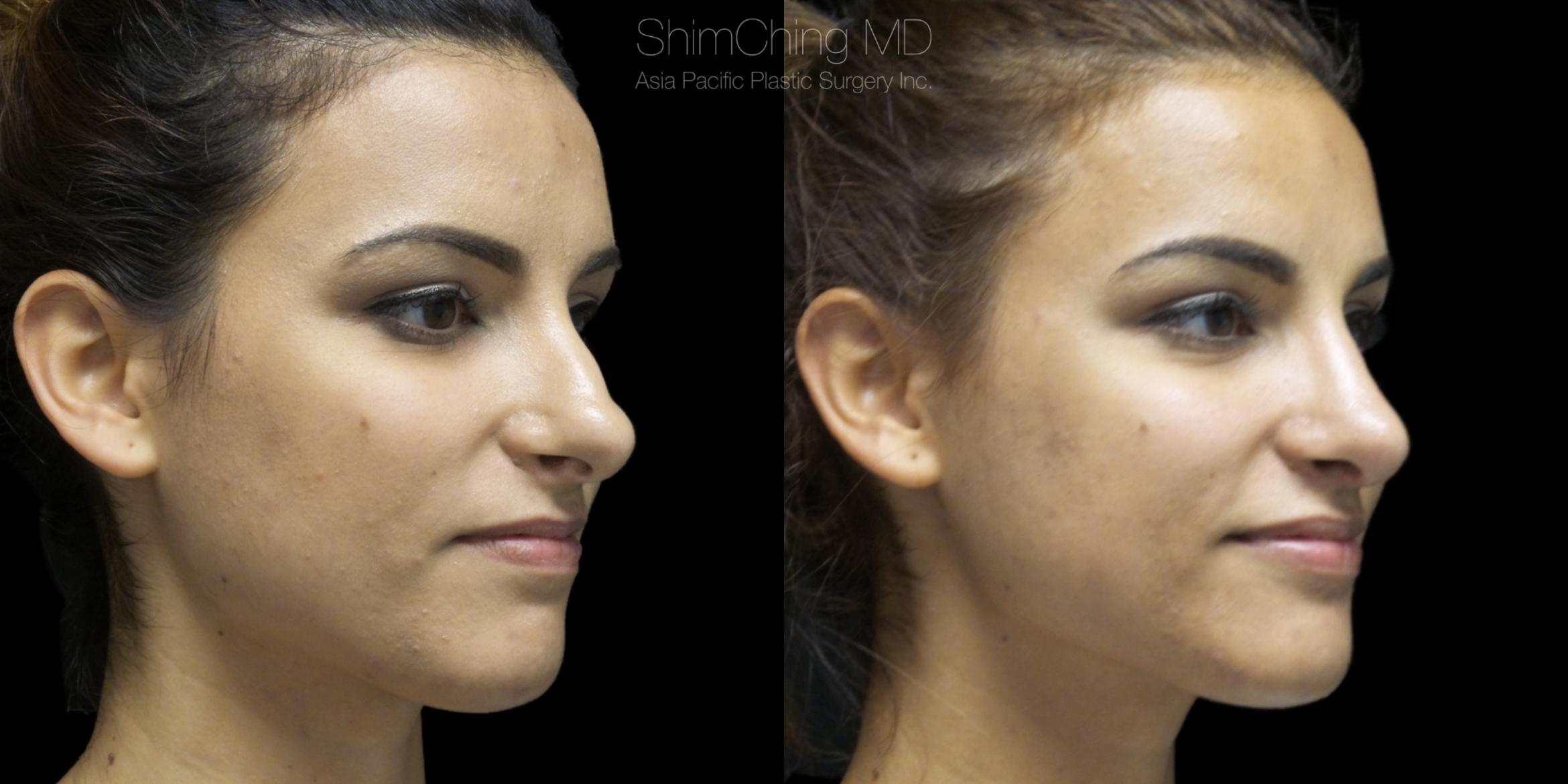 Rhinoplasty Case 310 Before & After Left Oblique | Honolulu, HI | Shim Ching, MD: Asia Pacific Plastic Surgery